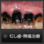 むし歯・無痛治療