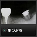 根の治療・土台(コア)