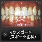 かみ合わせ・スポーツ歯科