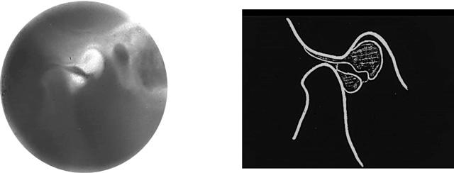 完全顎関節脱臼 急性期/開口制限リハビリ治療