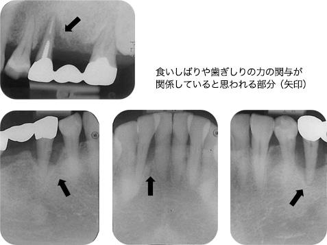 食いしばりや歯ぎしりの力の関与が関係していると思われる部分(矢印)